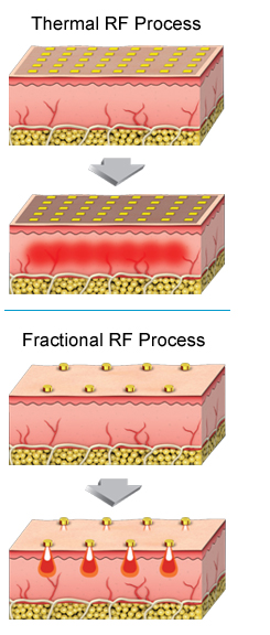 Duet RF Thermal & Fractional RF processes